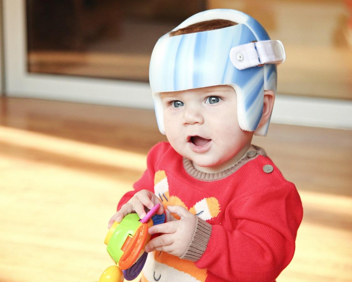Helmet therapy